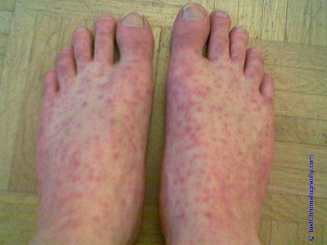Lupus Rash On Feet